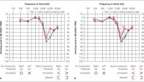 Opleiding tot audiologieassistent