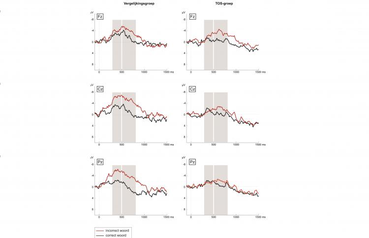 Uitslagen EEG onderzoek van drie kinderen